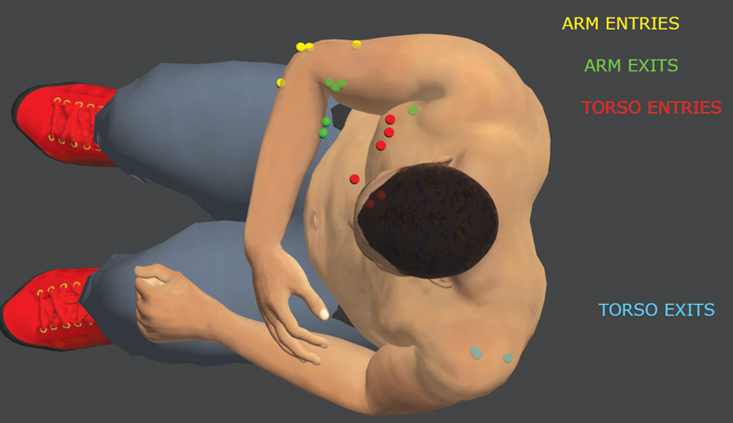 Biomechanics and 3D reconstruction in shooting cases